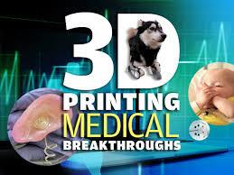 3D Printing Medical